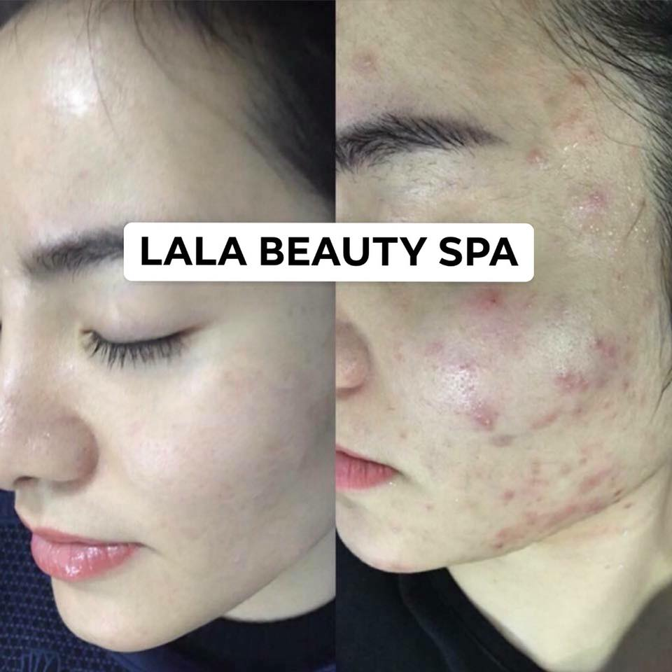 khach-hang-cua-myspa-lala-beauty-spa